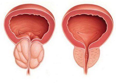 Предстательная железа увеличена симптомы